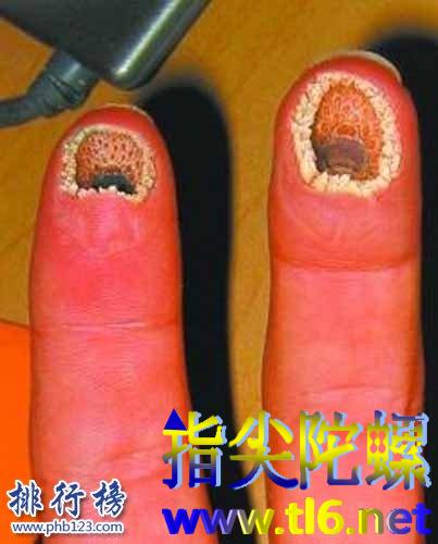 莲蓬乳图片和空手指图片